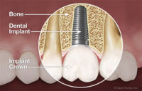 Read full article: What Are Dental Implants?