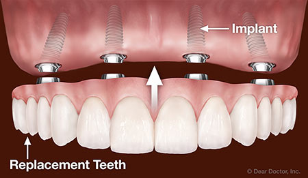 What Are Fixed Dentures?