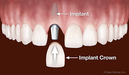 Dental implant replacing one tooth